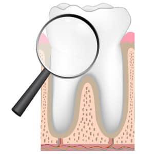 dentalcheckupmagnifying