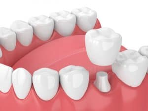 cedar west dental crown