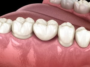 cedar west dental bridge