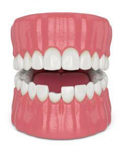 richfield dental bonding