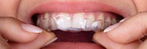 richfield teeth grinding