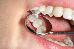 richfield children's cavities