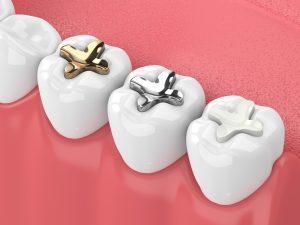 richfield dental fillings