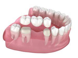 richfield dental bridge
